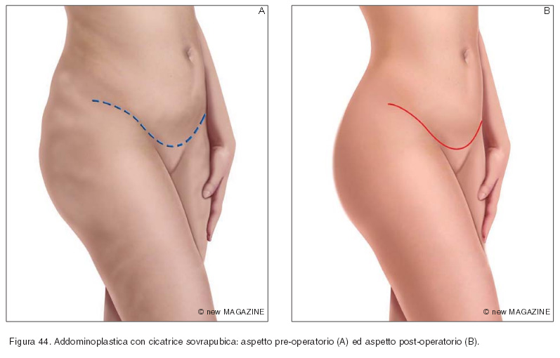 Addominoplastica con cicatrice sovrapubica: aspetto pre-operatorio (A) ed aspetto post-operatorio (B)