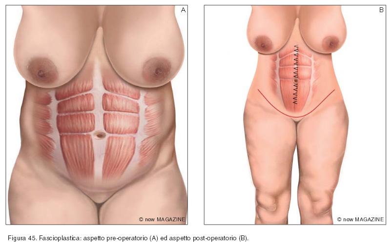 Fascioplastica: aspetto pre-operatorio (A) ed aspetto post-operatorio (B)