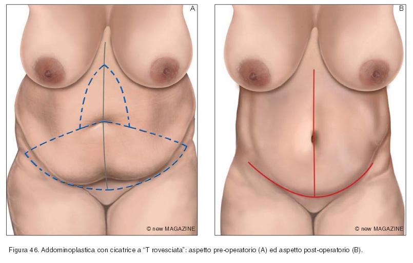 """Addominoplastica con cicatrice a """"T rovesciata"""": aspetto pre-operatorio (A) ed aspetto post-operatorio (B)"""
