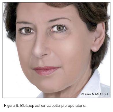Blefaroplastica: aspetto pre-operatorio