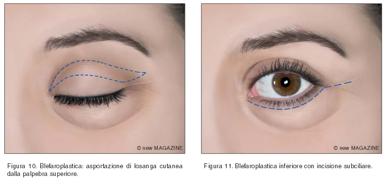 Blefaroplastica: asportazione di losanga cutanea dalla palpebra superiore e blefaroplastica inferiore con incisione subciliare