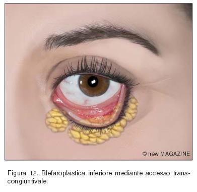 Blefaroplastica inferiore mediante accesso trans-congiuntivale