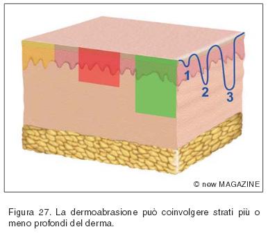 La dermoabrasione può coinvolgere strati più o meno profondi del derma
