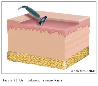 Dermoabrasione superficiale