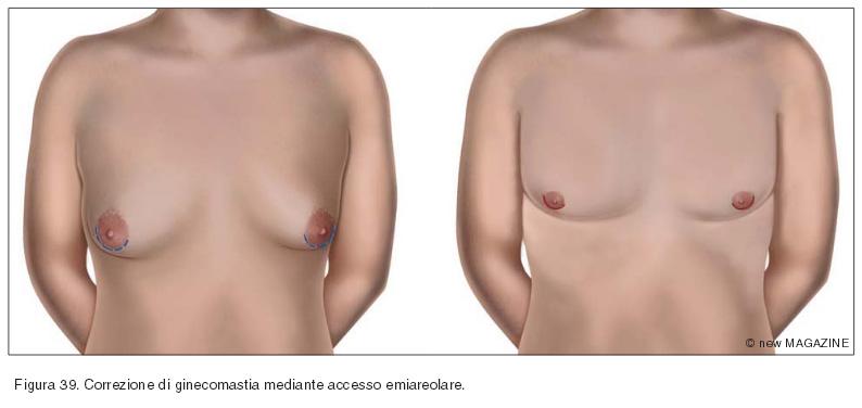 Correzione di ginecomastia mediante accesso emiareolare