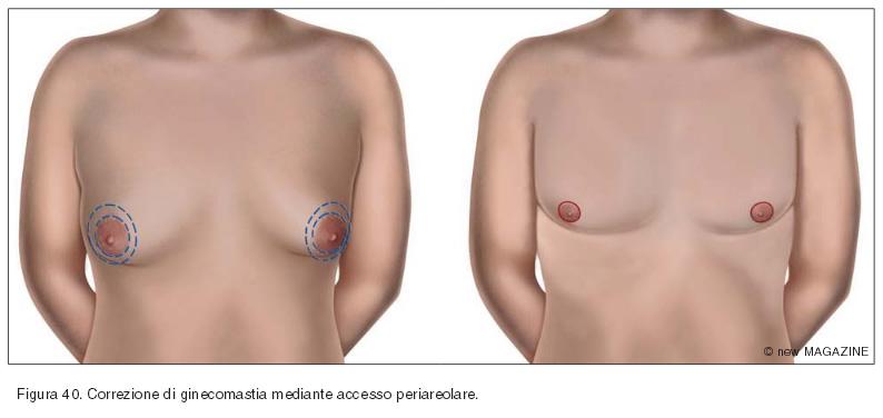Correzione di ginecomastia mediante accesso periareolare