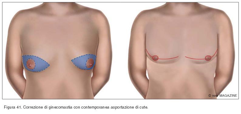 Correzione di ginecomastia con contemporanea asportazione di cute