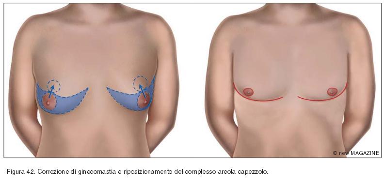 Correzione di ginecomastia e riposizionamento del complesso areola capezzolo