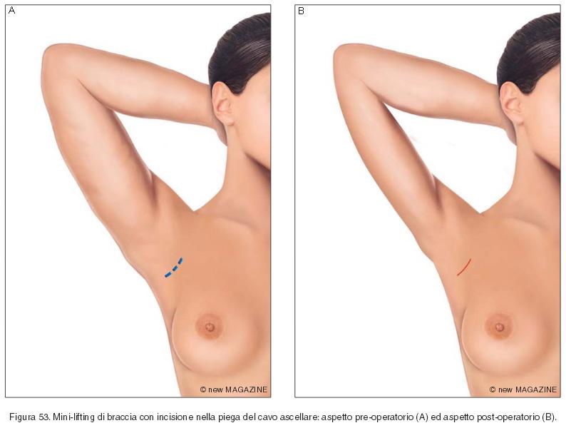Mini-lifting di braccia con incisione nella piega del cavo ascellare: aspetto pre-operatorio (A) ed aspetto post-operatorio (B)