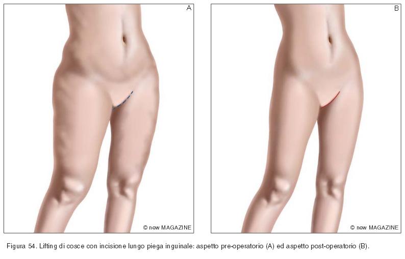 Lifting di cosce con incisione lungo piega inguinale: aspetto pre-operatorio (A) ed aspetto post-operatorio (B)