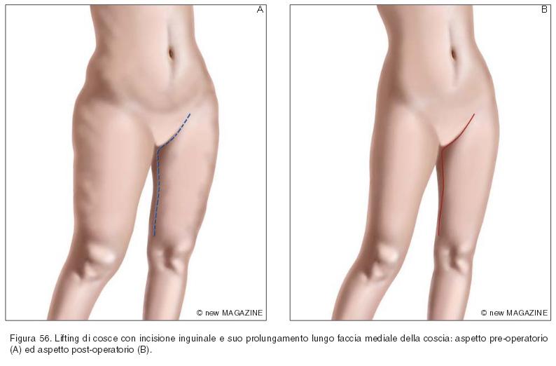 Lifting di cosce con incisione inguinale e suo prolungamento lungo faccia mediale della coscia: aspetto pre-operatorio (A) ed aspetto post-operatorio (B)