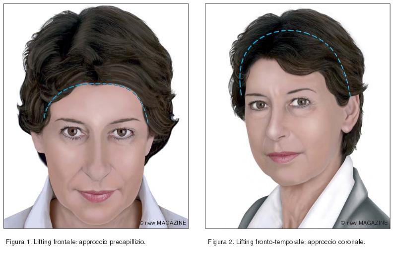 Lifting frontale: approccio precapillizio (figura 1) e lifting fronto-temporale: approccio coronale (figura 2)