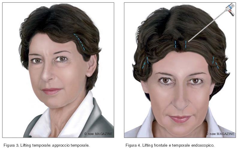 Lifting temporale: approccio temporale (figura 3) e lifting frontale e temporale endoscopico (figura 4)