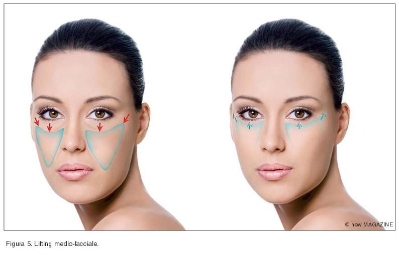 Lifting medio-facciale