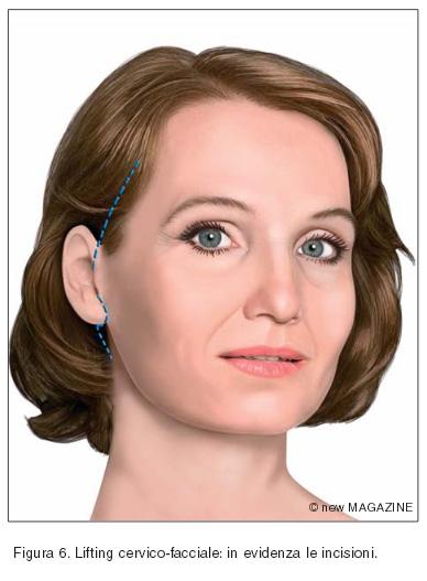 Lifting cervico-facciale: in evidenza le incisioni
