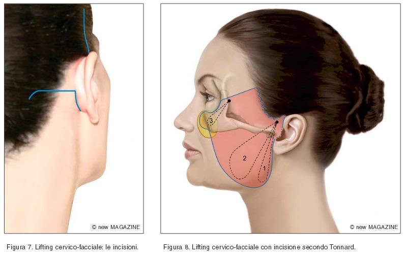 Lifting cervico-facciale: le incisioni e lifting cervico-facciale con incisione secondo Tonnard