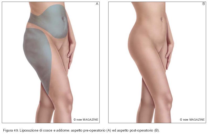Liposuzione di cosce e addome: aspetto pre-operatorio (A) ed aspetto post-operatorio (B)