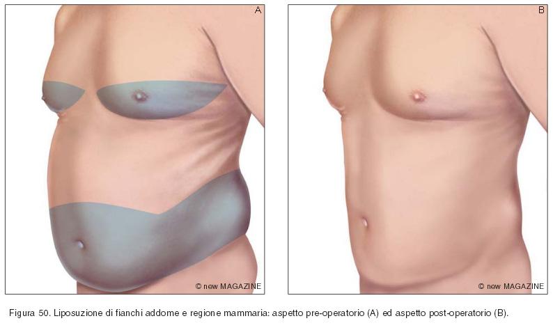 Liposuzione di fianchi addome e regione mammaria: aspetto pre-operatorio (A) ed aspetto post-operatorio (B)