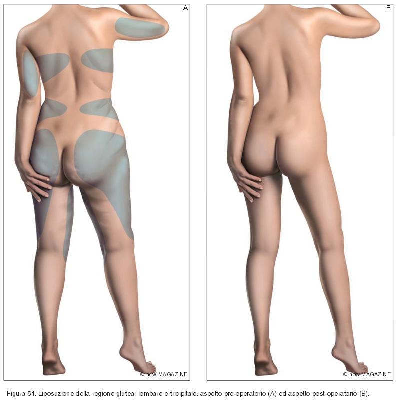Liposuzione della regione glutea, lombare e tricipitale: aspetto pre-operatorio (A) ed aspetto post-operatorio (B)