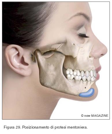 Posizionamento di protesi mentoniera
