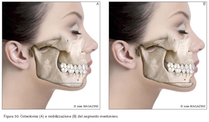 Osteotomia (A) e mobilizzazione (B) del segmento mentoniero