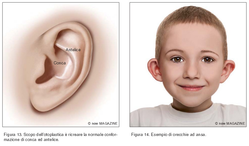 Scopo dell'otoplastica è ricreare la normale conformazione di conca ed antelice (figura 13); esempio di orecchie ad ansa (figura 14)