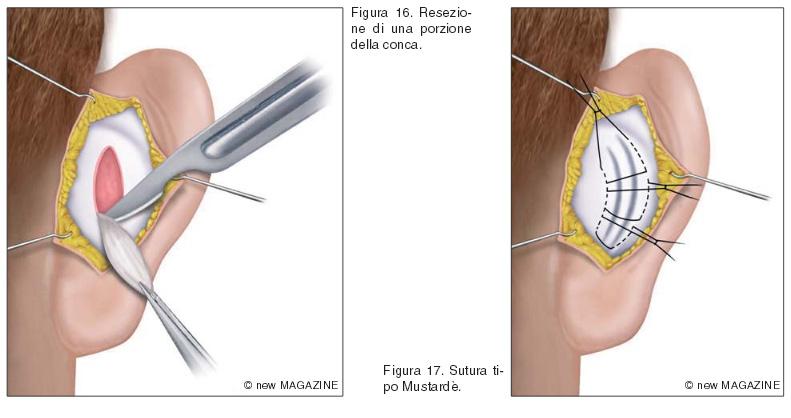 Resezione di una porzione della conca (figura 16) e sutura tipo Mustardè (figura 17)