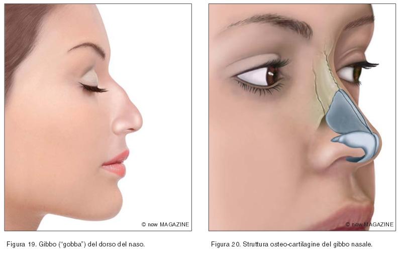"""Gibbo (""""gobba"""") del dorso del naso (figura 19) e struttura osteo-cartilagine del gibbo nasale (figura 20)"""