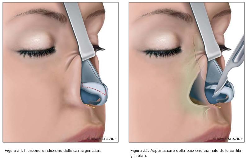Incisione e riduzione delle cartilagini alari (figura 21) e asportazione della porzione craniale delle cartilagini alari (figura 22)