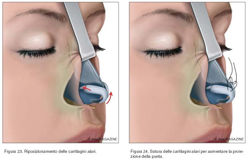 Riposizionamento delle cartilagini alari (figura 23) e sutura delle cartilagini alari per aumentare la proiezione della punta (figura 24)