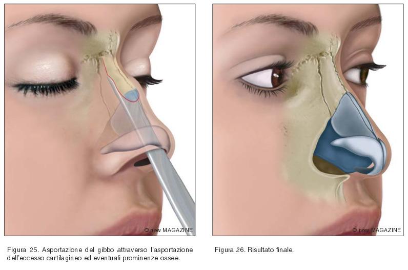Asportazione del gibbo attraverso l'asportazione dell'eccesso cartilagineo ed eventuali prominenze ossee (figura 25) e risultato finale (figura 26)